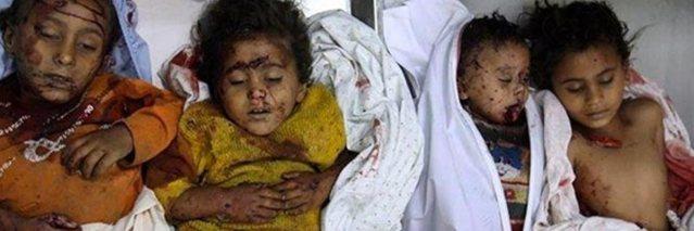 Children-Yemen-war